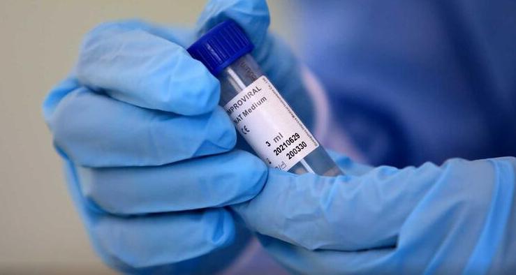 """Imagem para OMS compara covid-19 ao VIH e diz que """"talvez nunca desapareça"""""""